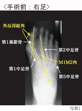 外反母趾の手術前