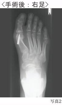 外反母趾の手術後
