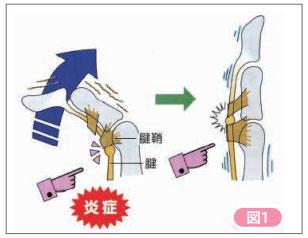 ばね指 腱の炎症図
