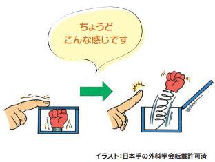 ばね指 イメージ図