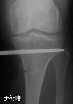 脛骨骨切り術の手術時