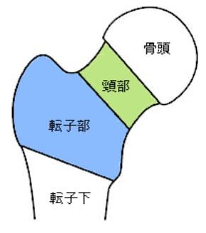 大腿骨近位部骨折の図1