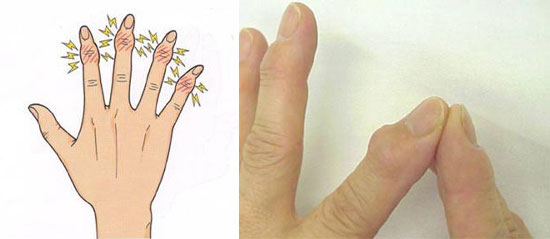 ヘバーデン結節の症状