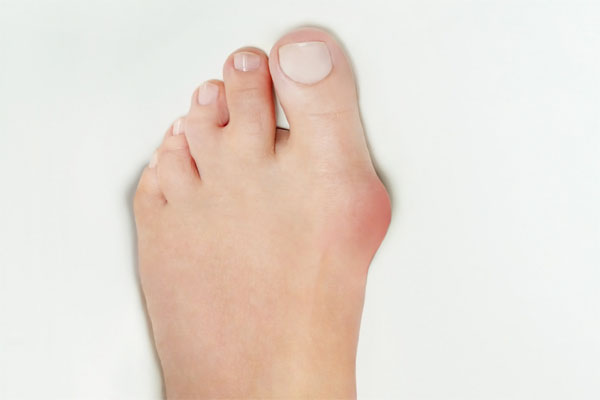 激しい痛み小指足