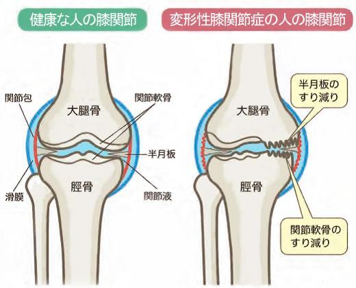 変形 性 膝 関節 症 と は