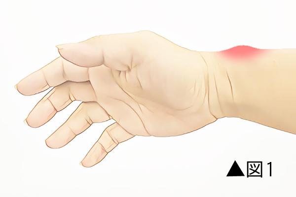ドゥケルバン腱鞘炎の症状