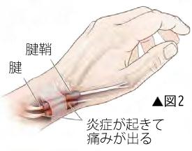ドゥケルバン腱鞘炎の原因