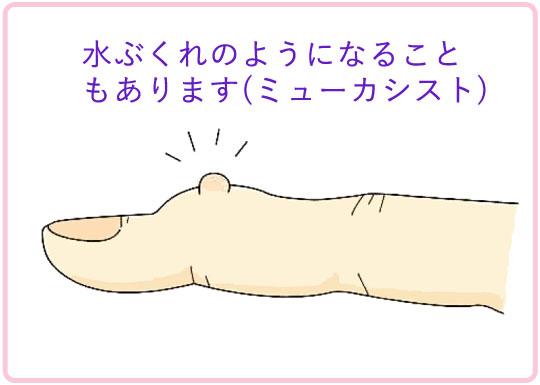 へバーデン結節 症状 水ぶくれ(ミューカシスト)